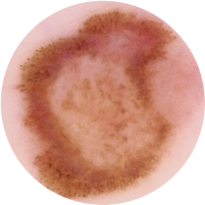 Dermatologie 1