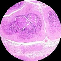 Dermatologie 2